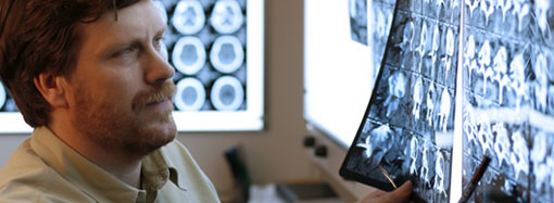 Arzt studiert Röntgenaufnahmen